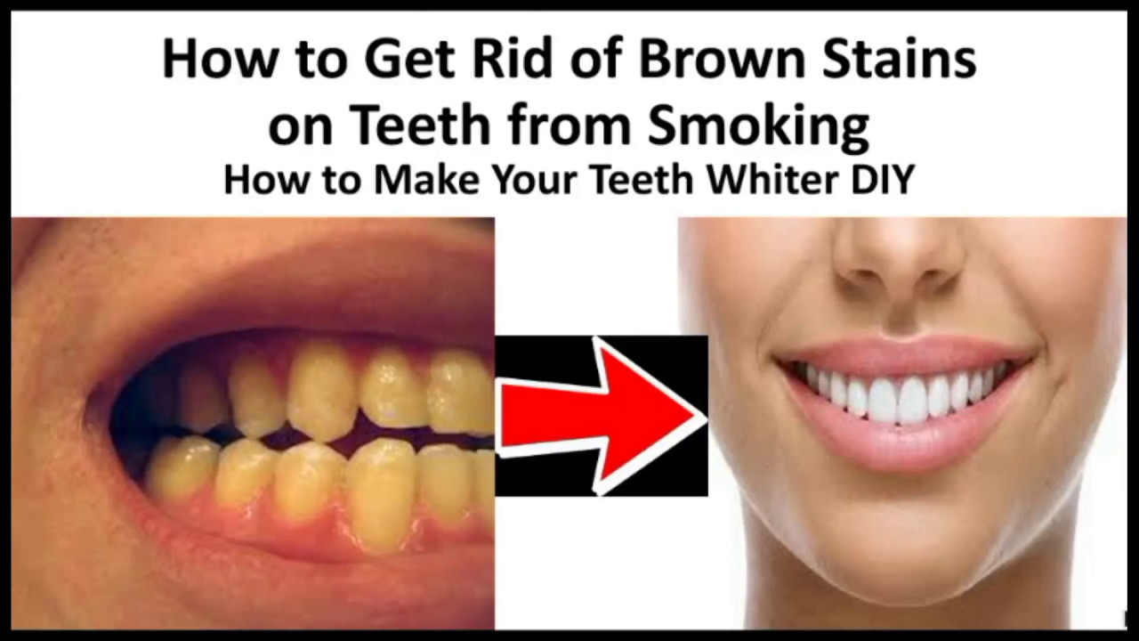 How To Get Rid Of Brown Stains On Teeth From Smoking How To Make