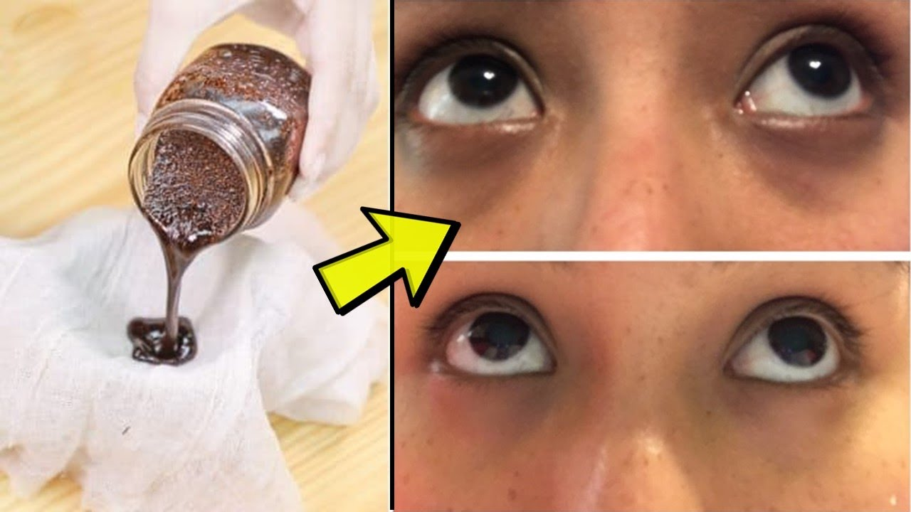 How to Get Rid of Dark Circles Under Eyes 5 Minute Crafts ...