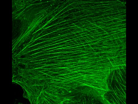 GFP beta actin labelled stress fibers (timelapse)