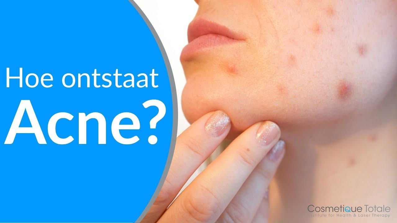 wat is acne