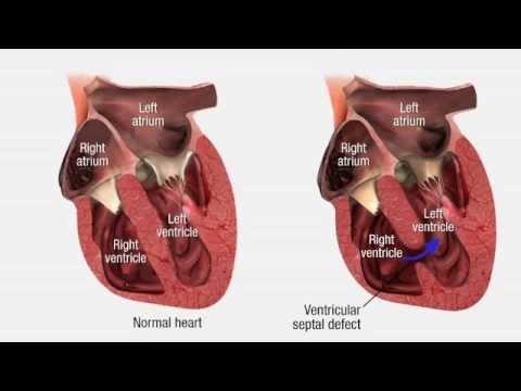 Cardiovascular Pathology - Heart Disease