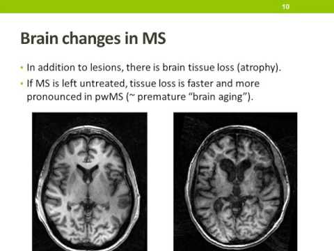 Multiple Sclerosis: Cognitive and brain changes in MS