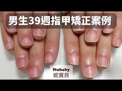 指甲矯正案例-男生摳咬指甲變形,不到1年的矯正後變怎樣~
