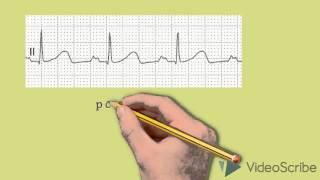 видео Гипертрофия левого желудочка сердца, правого, предсердий