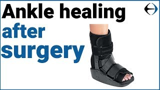 Ankle Surgery: How long does it take for your ankle to heal after surgery? Video