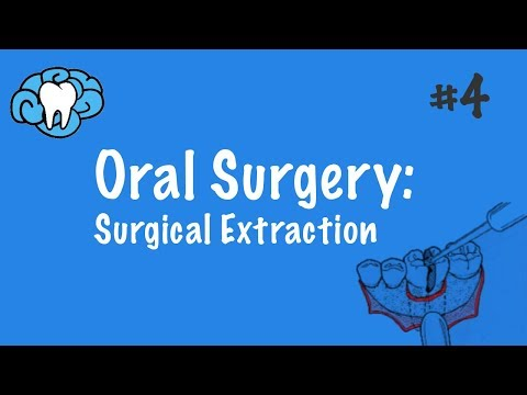 Oral Surgery | Surgical Extraction | NBDE Part II