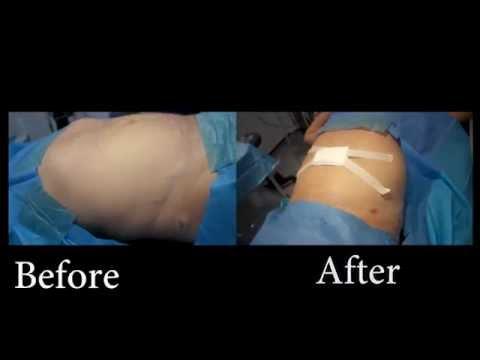 Liposuction For Men   London Lipo Institute