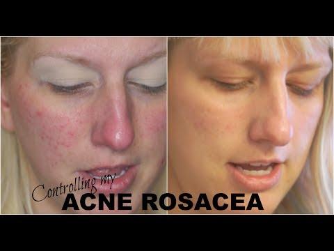 hqdefault - Proactiv For Rosacea Acne