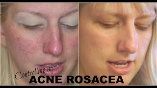 Acne Rosacea Skincare! What Finally Worked? Dermalogica Update #3