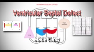 A ventricular septal defect or VSD is a birth defect where there is an abnormal connection between t.