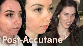 Post- Accutane Acne Skincare Routine