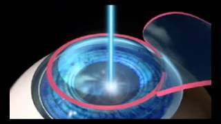 LASEK and LASIK Surgery | Vold Vision
