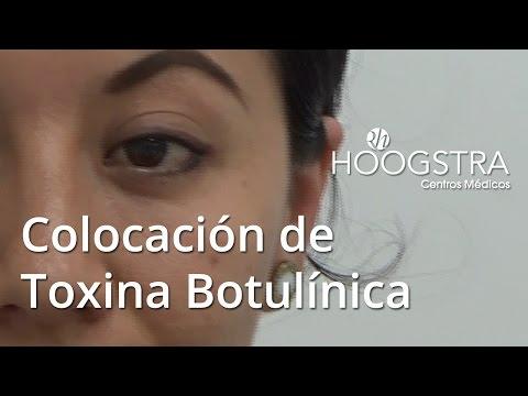 Colocación de toxina botulinica (15149)