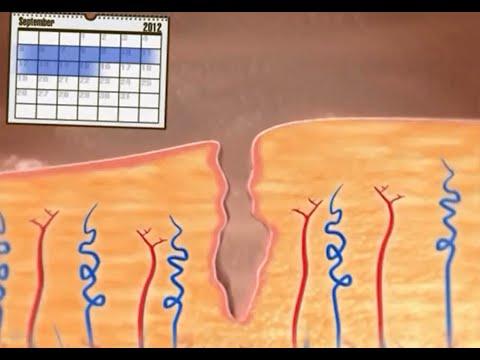 Was passiert bei der Menstruation?