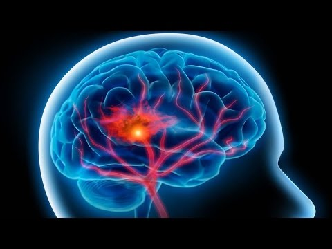 Stroke – معلومات صحية عن السكتة القلبية – فيديو توضيحي من موقع دكتوري