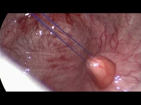 Дивертикул мочевого пузыря операция. Везикоскопия у пациента 5 лет.