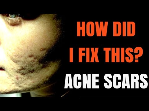 How to treat acne scars - Dermatologist explains