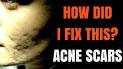 hqdefault - Acne Boxcar Scar Pictures