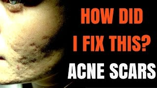 How Treat Acne Scars
