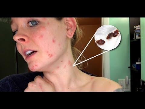 My BED BUG NIGHTMARE - Vlog Wk 56