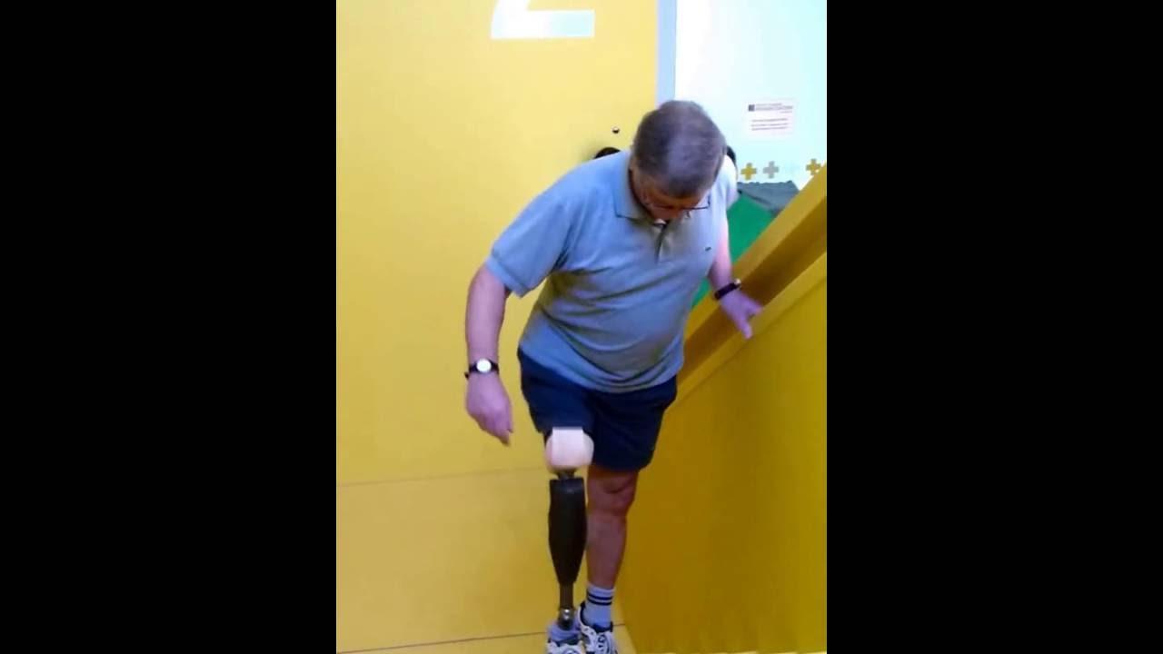 Treppensteigen aufwärts mit neuer Beinprothese - YouTube