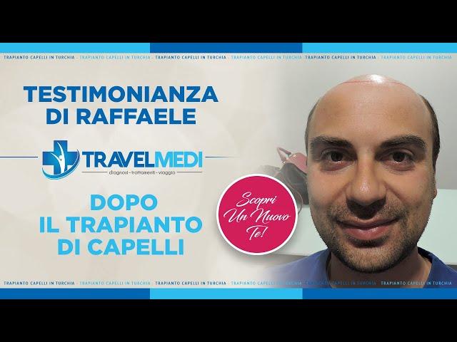 Trapianto Capelli Turchia - Testimonianza dell'attore Raffaele Longobardi - Dott.ssa Öykü ÇELEN