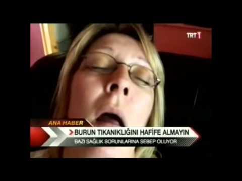 Op.Dr.Süreyya Şeneldir - Burun Tıkanıklığının Yol Açtığı Sorunlar ( Trt Haber)