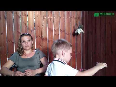Нейропатия малоберцового нерва - симптоматика и терапия