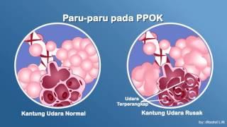 Sejak munculnya Covid-19, berbagai penyakit paru-paru yang lain juga menjadi perhatian banyak orang..