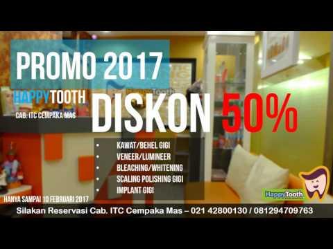 Promo 2017 - Happytooth 085211300100 Klinik Gigi Jakarta Timur