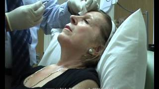 Botulinum toxin [botox, dysport, azzalure] treatments, Norwich, Norfolk, UK Thumbnail