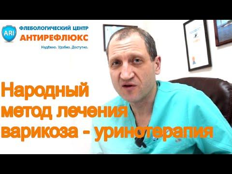 Народные методы лечения варикоза -  уринотерапия   уринотерапия   условиях   народная   медицина   домашних   варикоза   лечение   варикоз   в