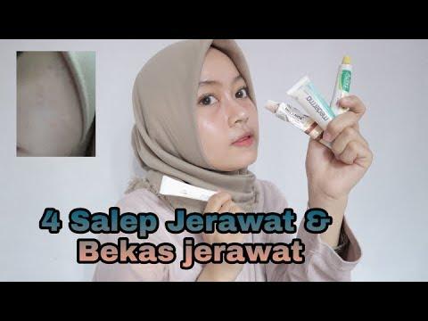 4 SALEP UNTUK JERAWAT DAN BEKAS JERAWAT || Maya FN