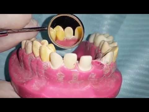 "all ceramic crown preparation for Maxillary canine ""U3"""