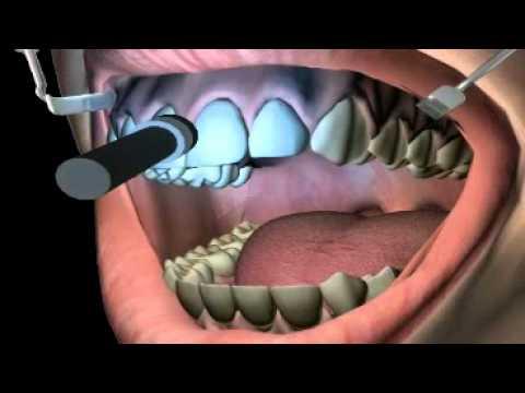 What Is Teeth Bleaching Youtube