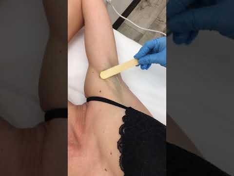 Как проходит процедура элос эпиляции в подмышках