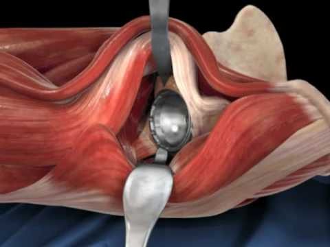 total hip replacement video download