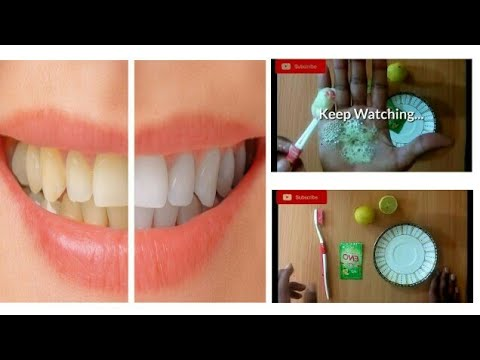 How To Get Whiten Teeth With Lemon Juice And Eno Youtube