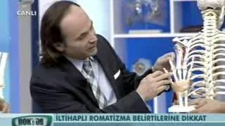Prof.Dr. Ömer Kuru, Doktorum'da 'Romatoid Artrit' nedir anlatıyor.1.kısım - [tvarsivi.com]