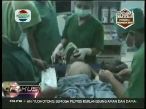 Operasi Hisprung Ahmad Alamsyah RSUD Undata, Palu