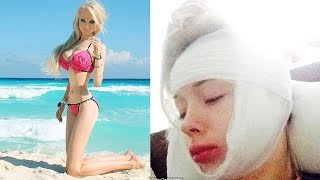 Human Barbie Assaulted Outside Her House