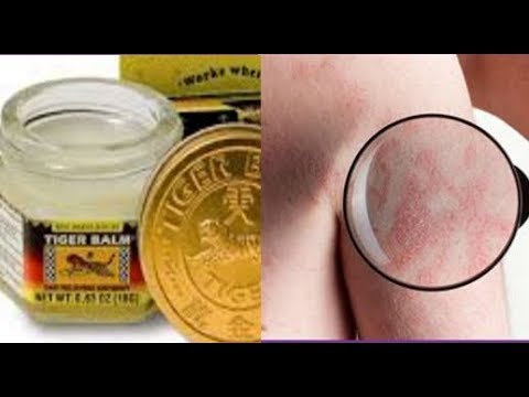 Root Causes of Scabies And 7 Natural Treatments That Work Fast