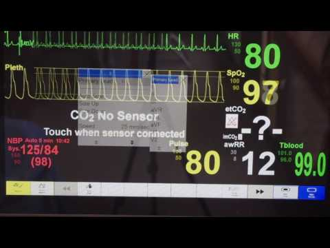 Patient Monitor Tutorial