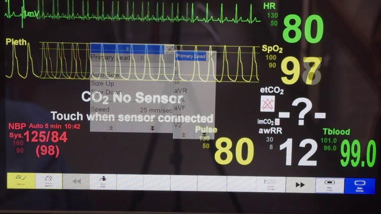 Patient Monitor Tutorial