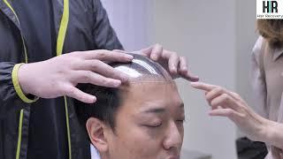 【Hair Recovery復原法】香港假髮專門店 - 繼續唔使剃頭髮 !!(精華版)