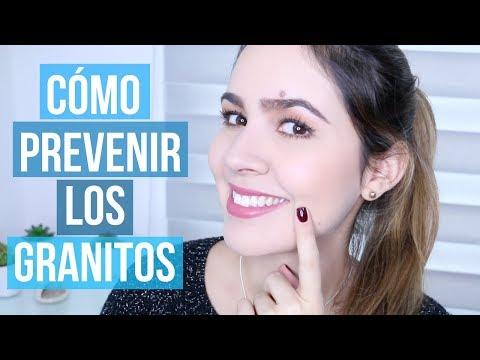 TIPS PARA PREVENIR⎜EVITAR EL ACNÉ Y LOS GRANITOS