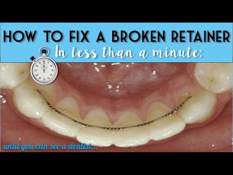 How to fix a broken tooth plate