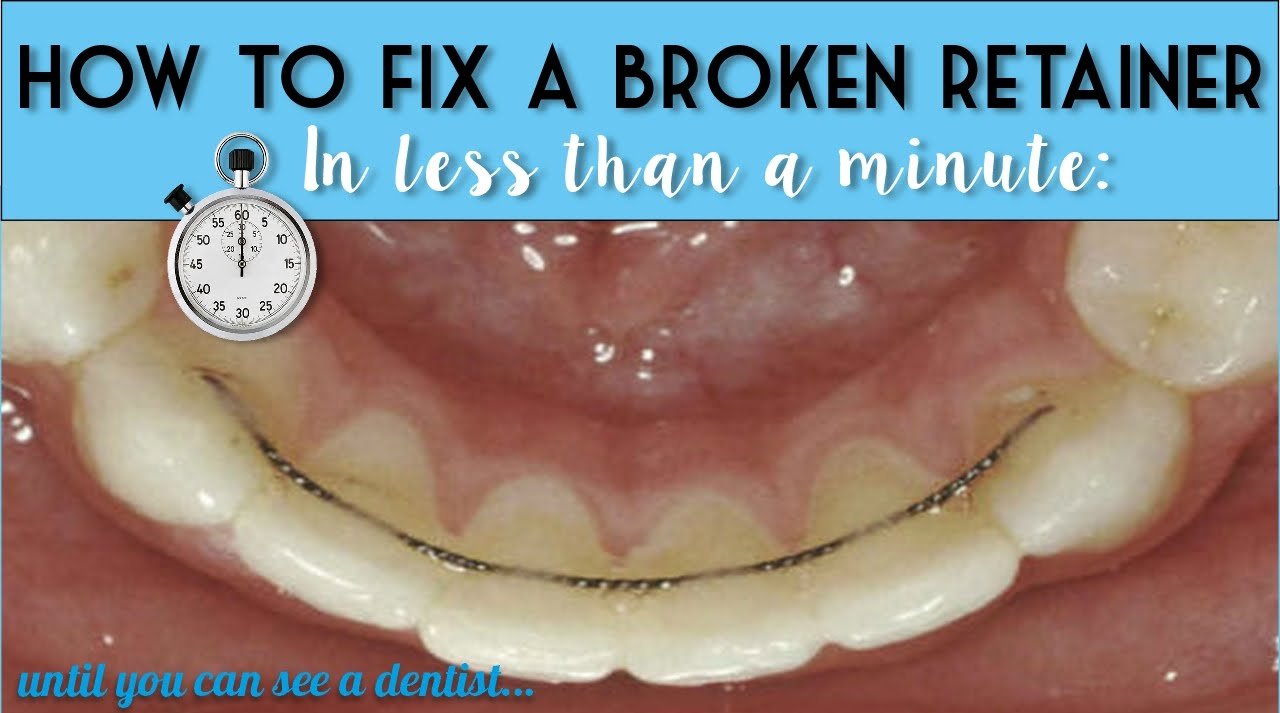 How to fix a broken retainer in under a minute (until you can see a dentist)