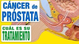 Cáncer de Próstata - Tratamiento
