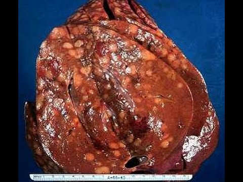 Update on Cirrhosis of the Liver